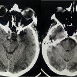 Figure 4: CT Brain of PRES